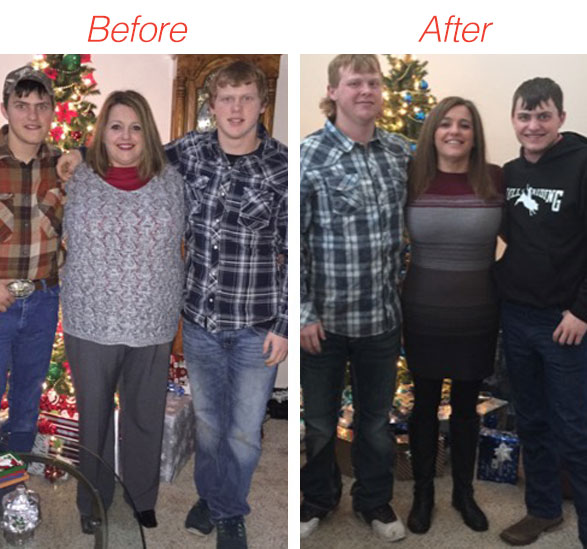 before-after-tracey